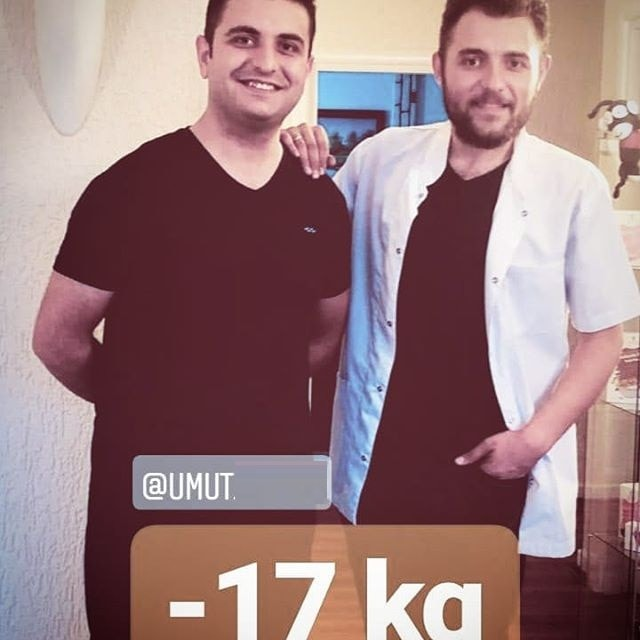 -17 KİLO